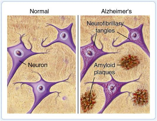 File:Amyloid plaques.jpg