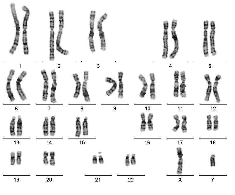 A figure to show a Karyogram of normal male chromosomes