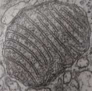 A cross-section of a mitochondrion under an electron microscope