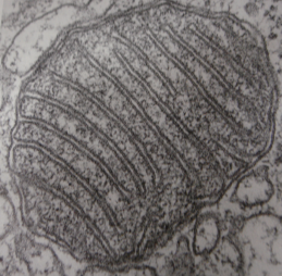 A cross-section of a mitochondrian under an electron microscope